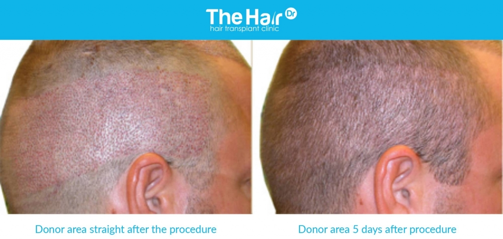 Example of a before and after of FUE treatment