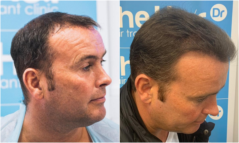 FUE Hair Transplant Result Hair Dr Ben Thornley